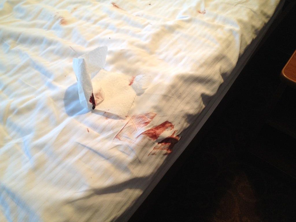 Пятна крови вывести на подушке фото